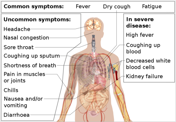 The Newly Emerged Covid 19 Disease A Systemic Review Springerlink