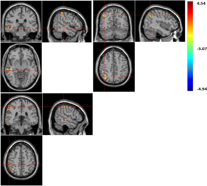 Resting-state brain activity in Chinese boys with low