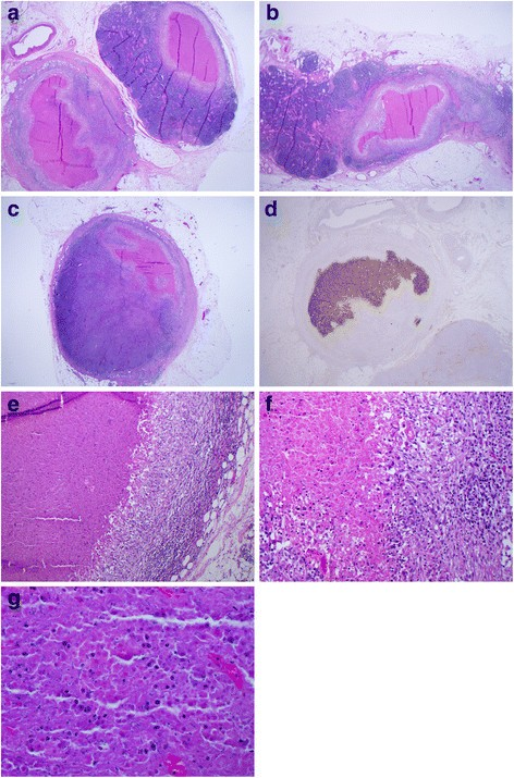 Medullary Colon Cancer Presenting With Total Necrosis Of All Regional Lymph Node Metastases Morphologic Description Of A Presumed Immune Mediated Event Diagnostic Pathology Full Text