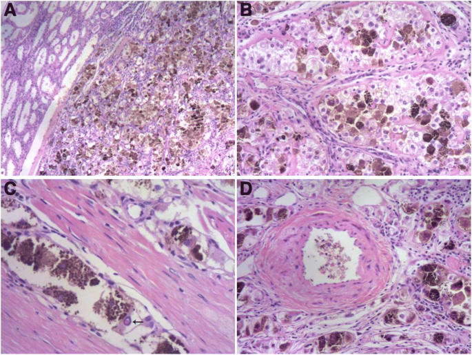 Melanotic Xp11 Translocation Renal Cancer A Report Of A Distinctive Case And A Review Of The Literature Diagnostic Pathology Full Text