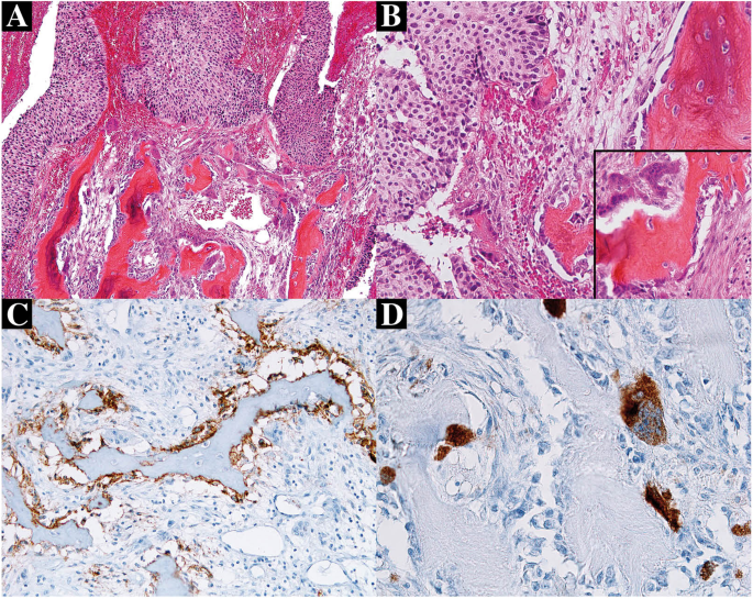 Stromal Osseous Metaplasia In Urothelial Carcinoma Of The Bladder A Rare Case Report And Literature Review Diagnostic Pathology Full Text