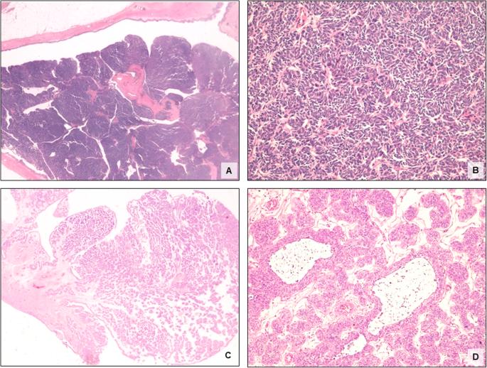 papilloma upper urinary tract