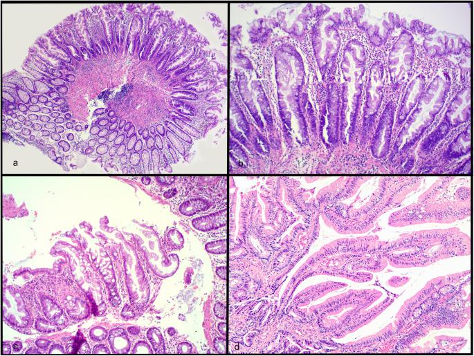adenoma tubulare et polypus hyperplasticus