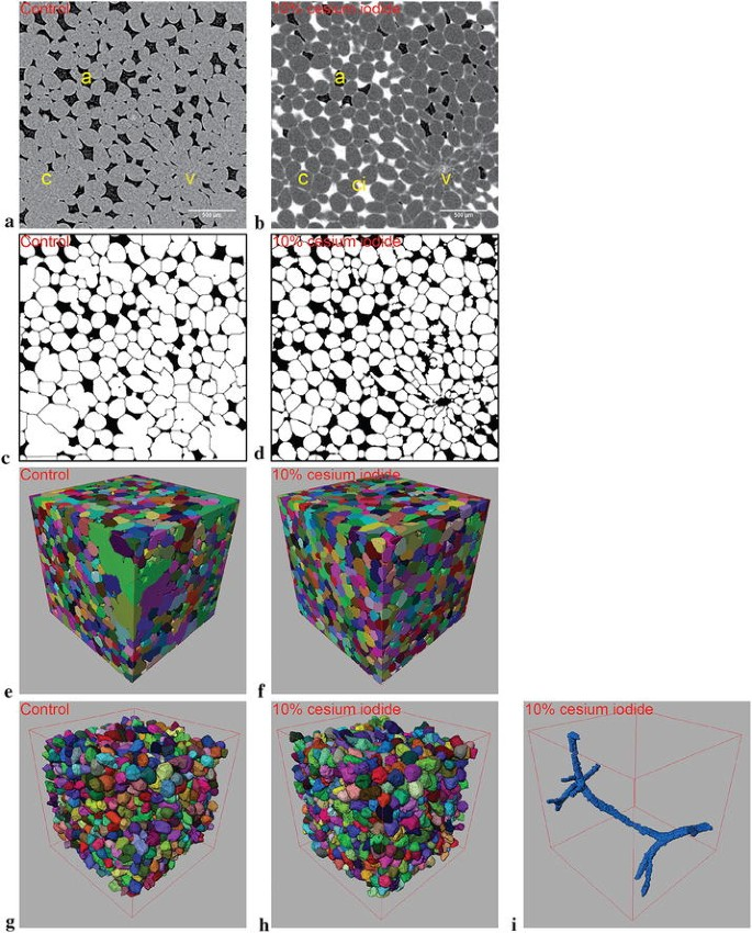 Contrast-enhanced 3D micro-CT of plant tissues using different