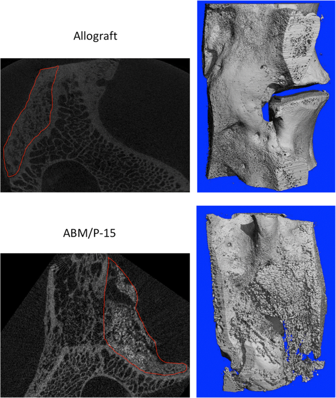 Comparison of synthetic bone graft ABM/P-15 and allograft on