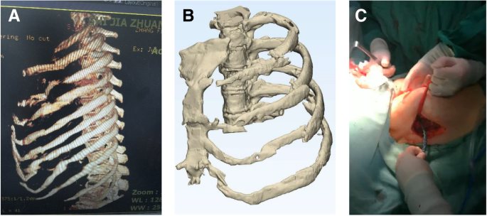 Analysis of the advantages of 3D printing in the surgical treatment