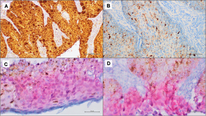 hpv lung cancer immunohistochemistry