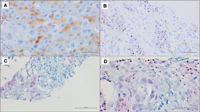 Hpv lung cancer immunohistochemistry - Hpv lung cancer prognosis