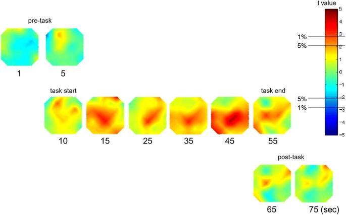 Reduced prefrontal hemodynamic response in pediatric autism spectrum