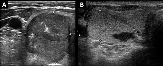 Ultrasound Features Of Medullary Thyroid Carcinoma Correlate With Cancer Aggressiveness A Retrospective Multicenter
