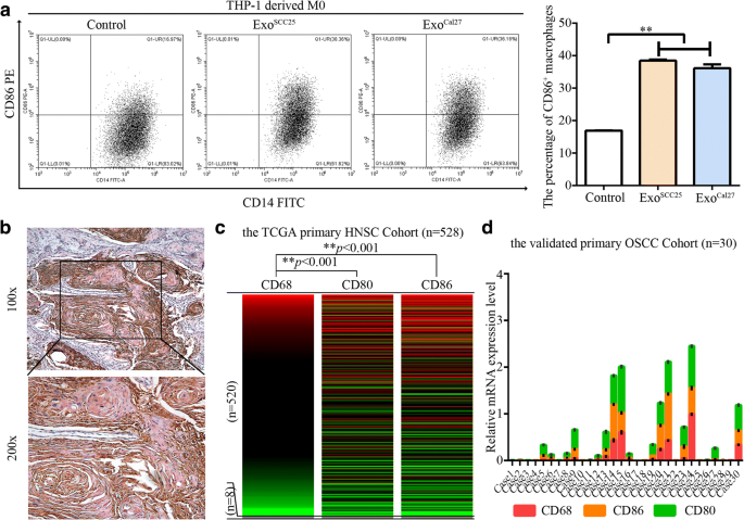 M1-like tumor-associated macrophages activated by exosome