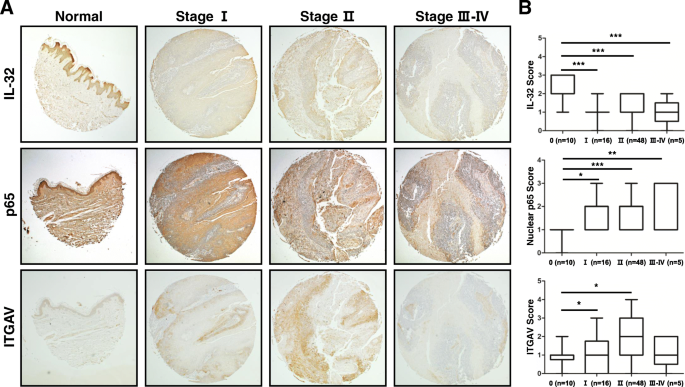Inhibition Of Skin Carcinogenesis By Suppression Of Nf Kb Dependent Itgav And Timp 1 Expression In Il 32g Overexpressed Condition Journal Of Experimental Clinical Cancer Research Full Text