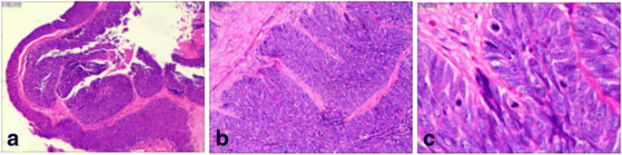 Superficially invasive cervical squamous cell carcinoma