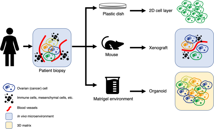 Organoids Of Epithelial Ovarian Cancer As An Emerging Preclinical In Vitro Tool A Review Journal Of Ovarian Research Full Text