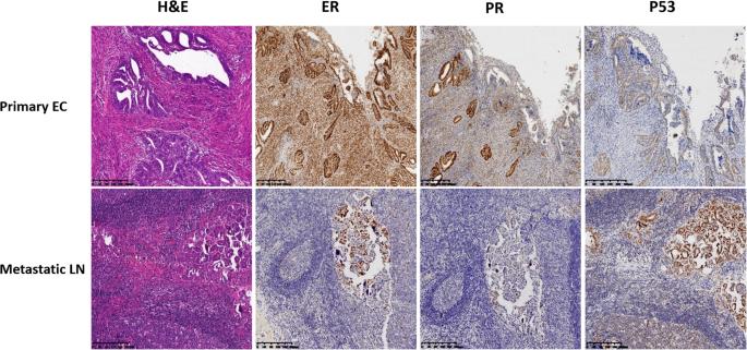 "Endometrioid endometrial cancer ""recurring"" as high-grade serous"