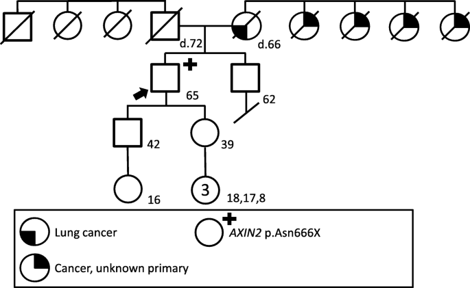 An American Patient With Polyposis Carrying A Scandinavian Axin2 Pathogenic Variant Springerlink