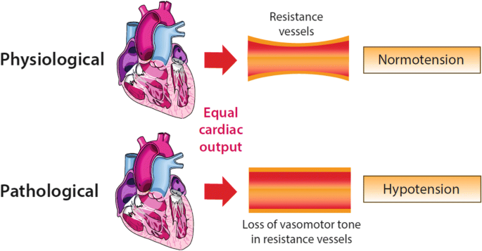 Definitions and pathophysiology of vasoplegic shock