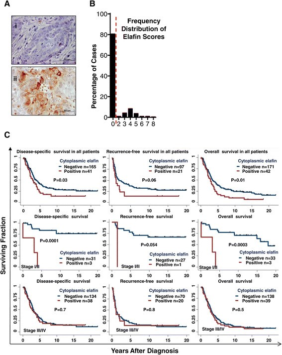 Elafin is downregulated during breast and ovarian tumorigenesis but