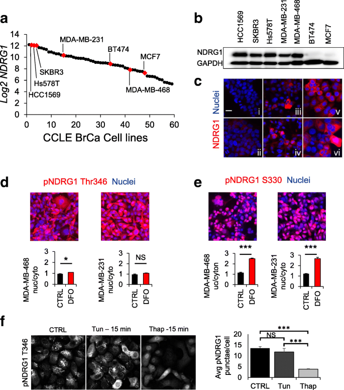NDRG1 regulates neutral lipid metabolism in breast cancer