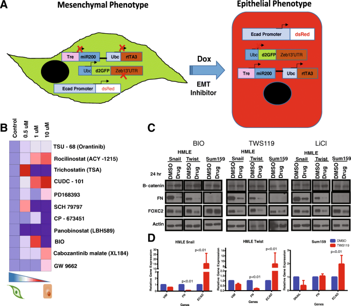 GSK3β regulates epithelial-mesenchymal transition and cancer