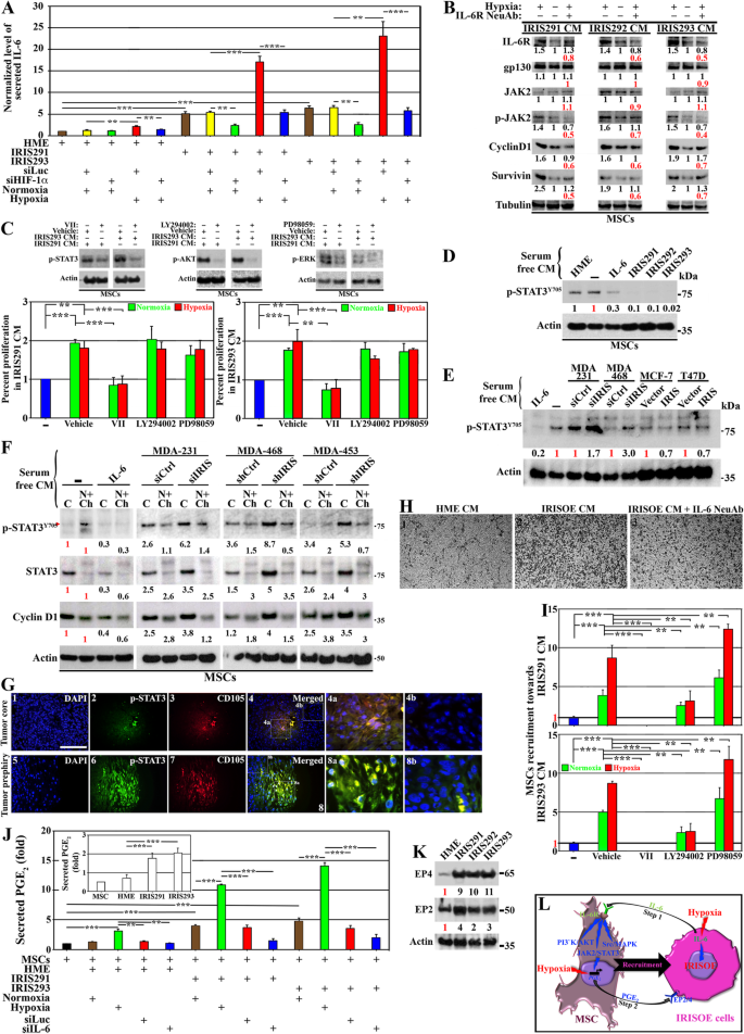The pro- and anti-tumor roles of mesenchymal stem cells toward BRCA1