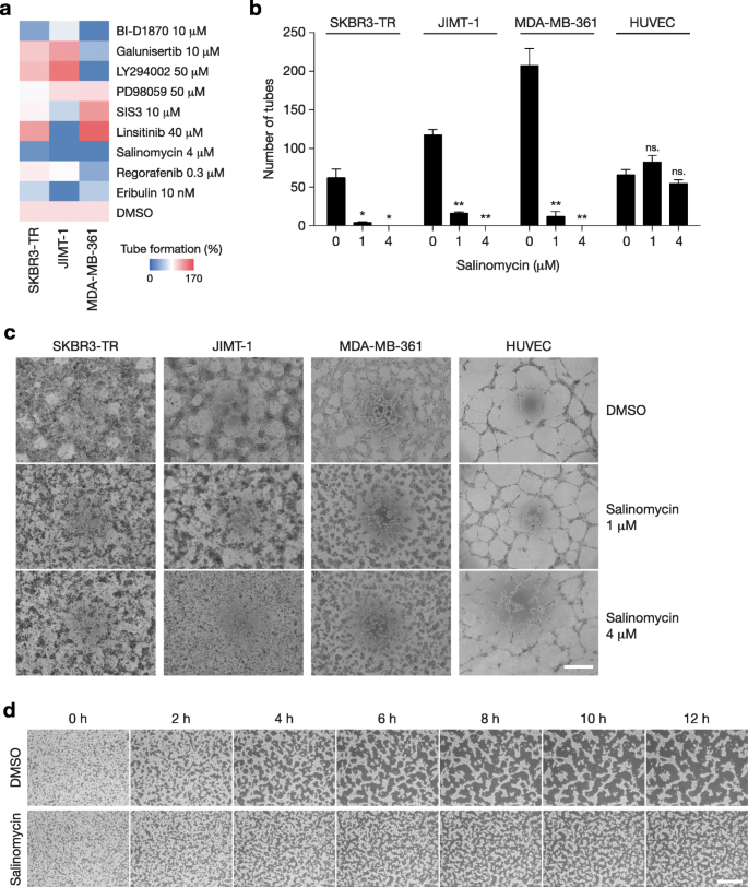 Vasculogenic mimicry is associated with trastuzumab resistance of
