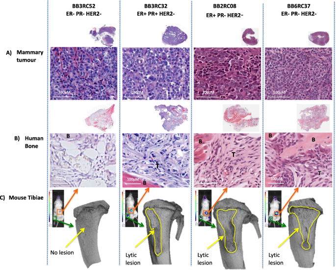 breast cancer with metastasis to bone