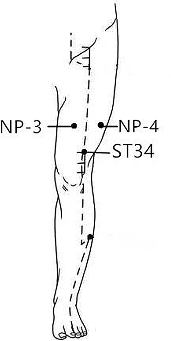 The cerebral mechanism of acupuncture for treating knee