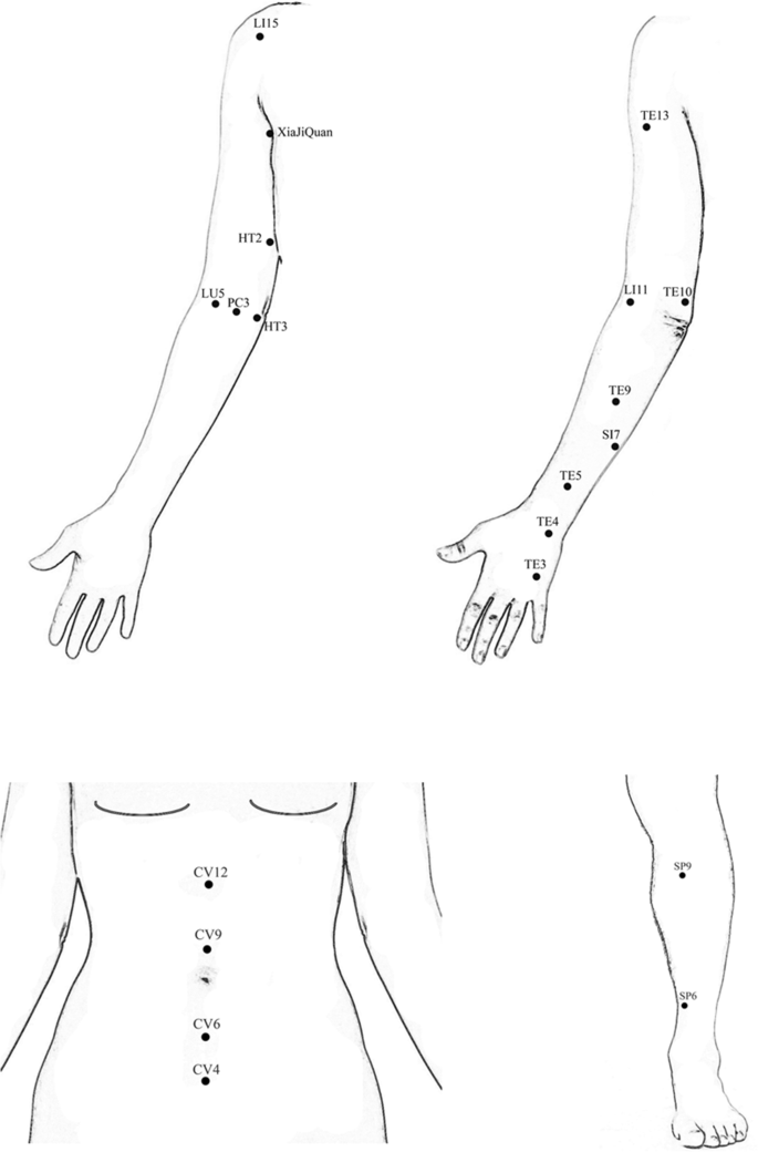 Comparison of effectiveness between warm acupuncture with