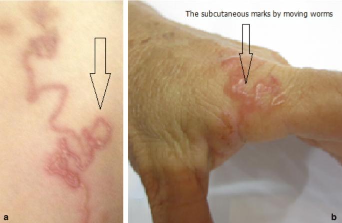 Strongyloidosis van, Larva currens infectio