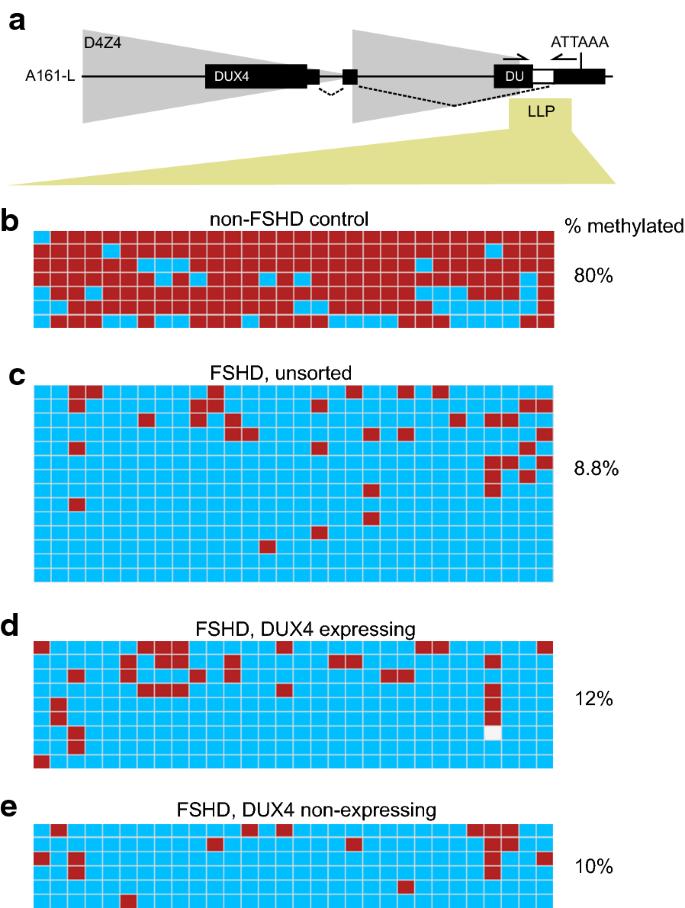 Sporadic DUX4 expression in FSHD myocytes is associated with