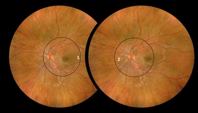 Comparison between binocular indirect ophthalmoscopy and