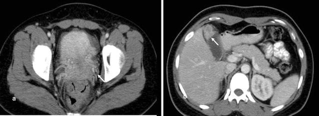 Ovarian Metastases From Gallbladder Mimics Primary Ovarian Neoplasm In Young Patient A Case Report Springerlink