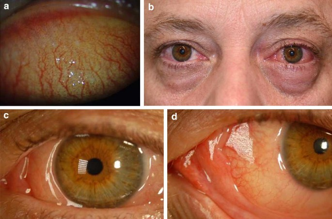 A contemporary look at allergic conjunctivitis | Allergy, Asthma & Clinical  Immunology | Full Text