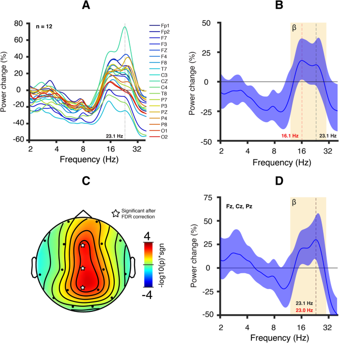 Mechanisms underlying the EEG biomarker in Dup15q syndrome ... on