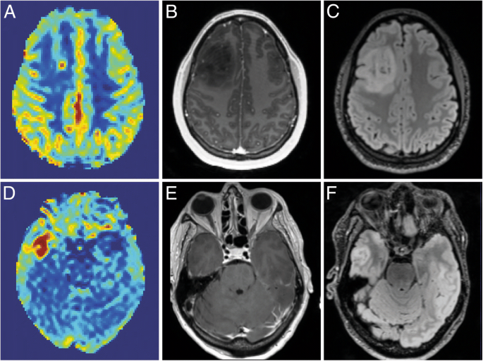 Strategic research agenda for biomedical imaging | Insights into
