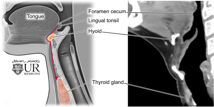 Thyroglossal Duct Pathology And Mimics Springerlink