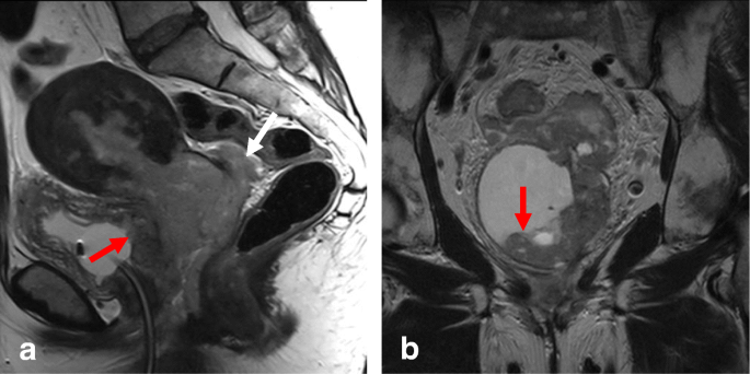 Role of MRI in staging and follow-up of endometrial and cervical