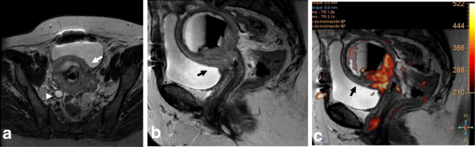 Role of MRI in staging and follow-up of endometrial and