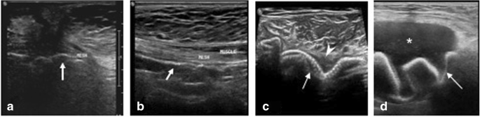 Mind the gap: imaging spectrum of abdominal ventral hernia