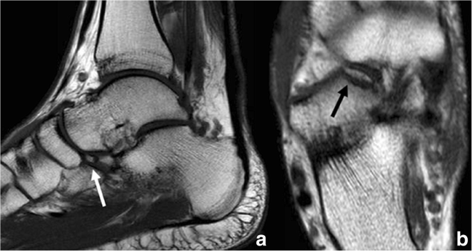 Anatomical variation in the ankle and foot: from incidental