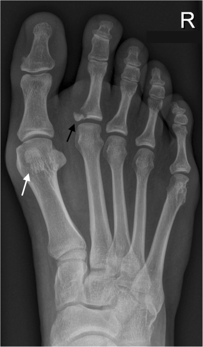 Anatomical Variation In The Ankle And Foot From Incidental Finding To Inductor Of Pathology Part Ii Midfooot And Forefoot Springerlink