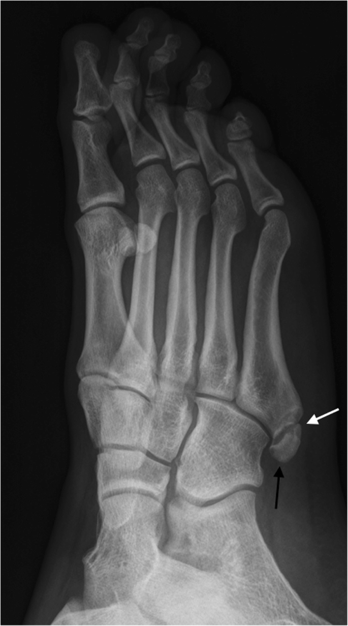 Anatomical Variation In The Ankle And Foot From Incidental Finding To Inductor Of Pathology Part Ii Midfooot And Forefoot Insights Into Imaging Full Text The purpose of this technical note is to report an endoscopic approach to. anatomical variation in the ankle and