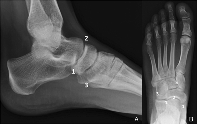 Anatomical Variation In The Ankle And Foot From Incidental Finding To Inductor Of Pathology Part Ii Midfooot And Forefoot Insights Into Imaging Full Text An accessory navicular is an extra bone found next (proximal) to the navicular bone. anatomical variation in the ankle and
