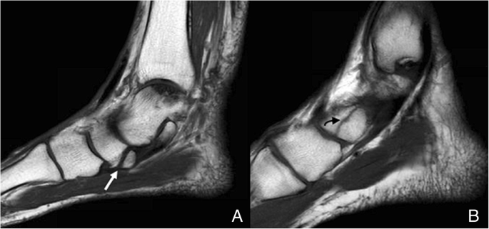 Anatomical Variation In The Ankle And Foot From Incidental Finding To Inductor Of Pathology Part Ii Midfooot And Forefoot Insights Into Imaging Full Text Unilateral enlarged ischiopubic synchondrosis is closely correlated with foot dominance. anatomical variation in the ankle and