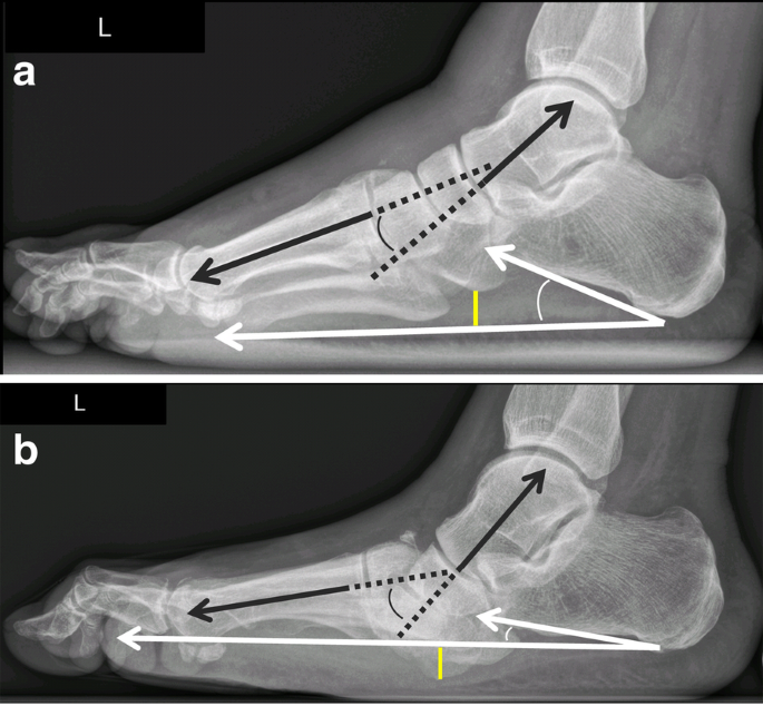 The Charcot Foot A Pictorial Review Insights Into Imaging Full Text