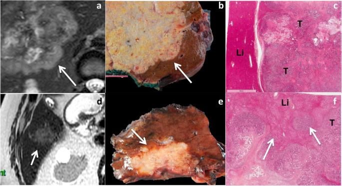 papilloma and cancer