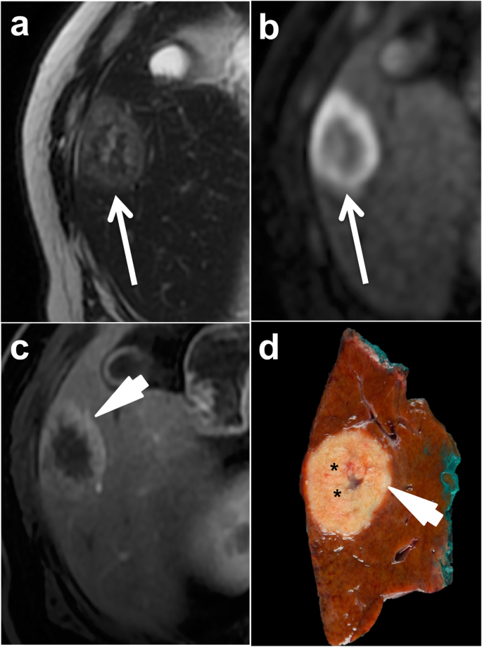 Colorectal Liver Metastases Radiopathological Correlation Insights Into Imaging Full Text