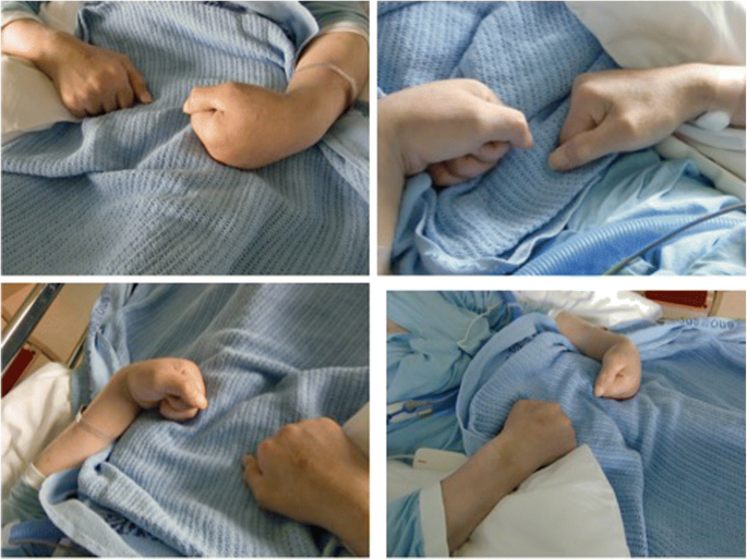 Clenched fist syndrome: a case report | Journal of Medical Case