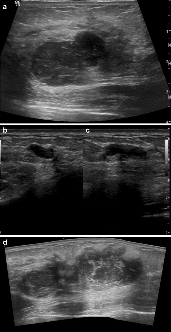 Malignant Phyllodes Tumor In Lynch Syndrome A Case Report